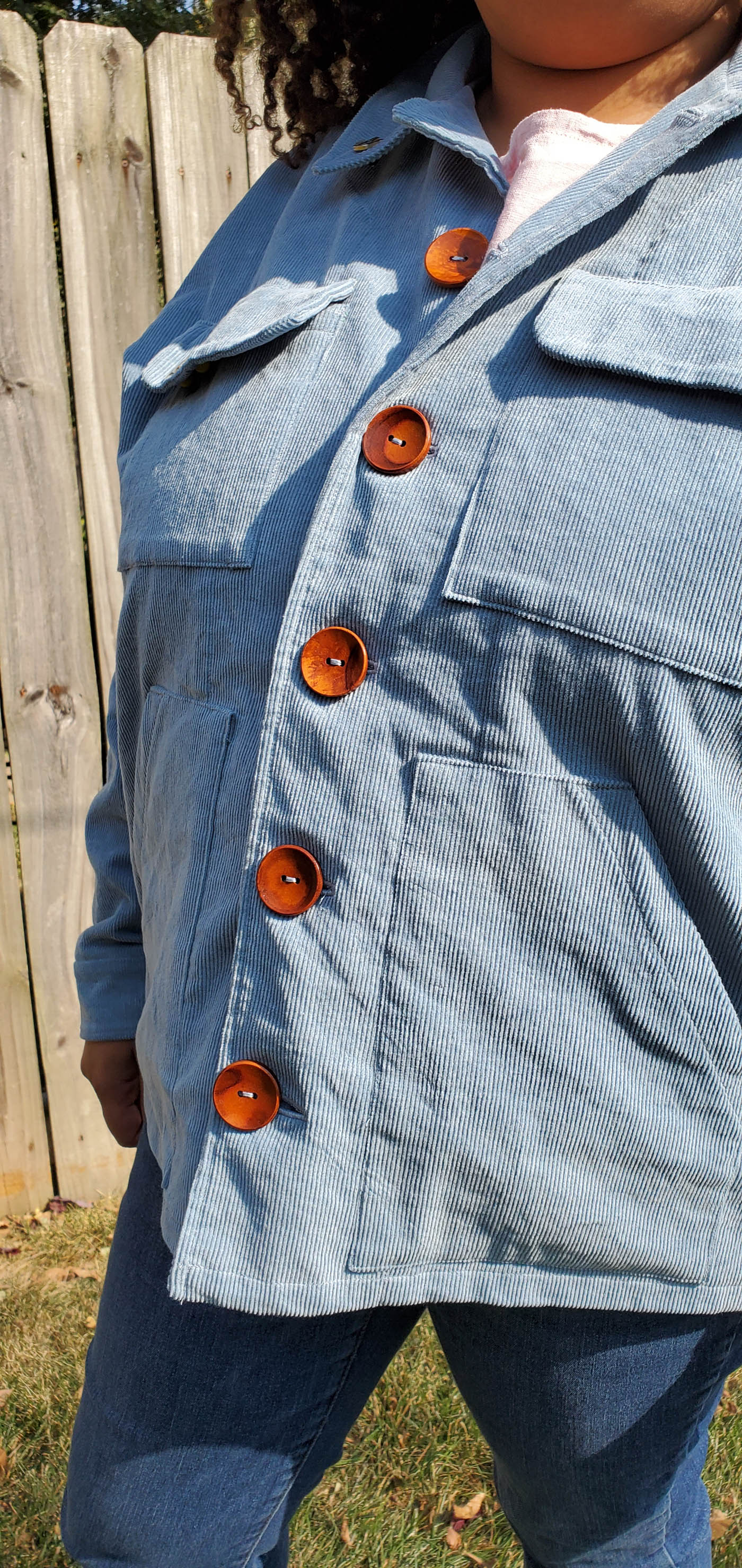 Jacket button band