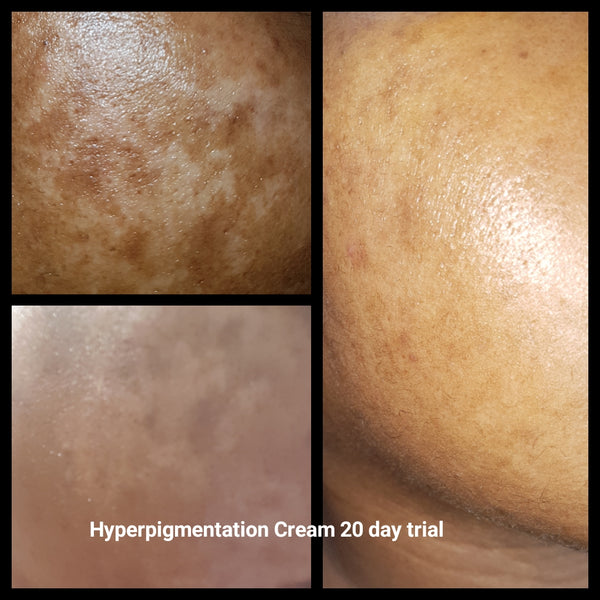 NEW PRODUCT ALERT! Diva Hypo Cream