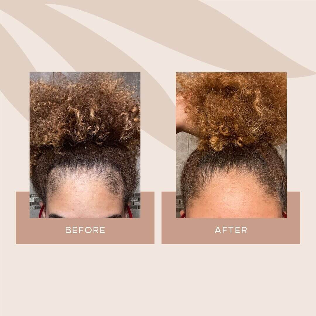 How to Grow Your Edges Back