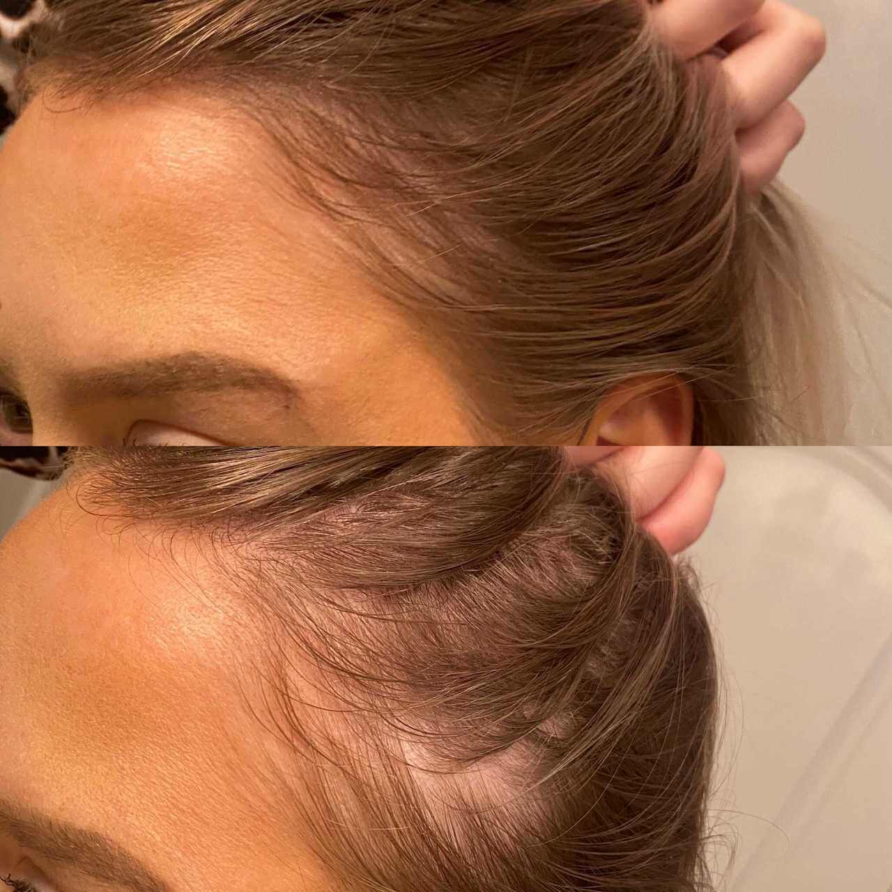 VEGAMOUR GRO Hair Serum Before and After