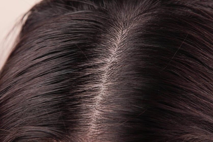 dry and oily scalp