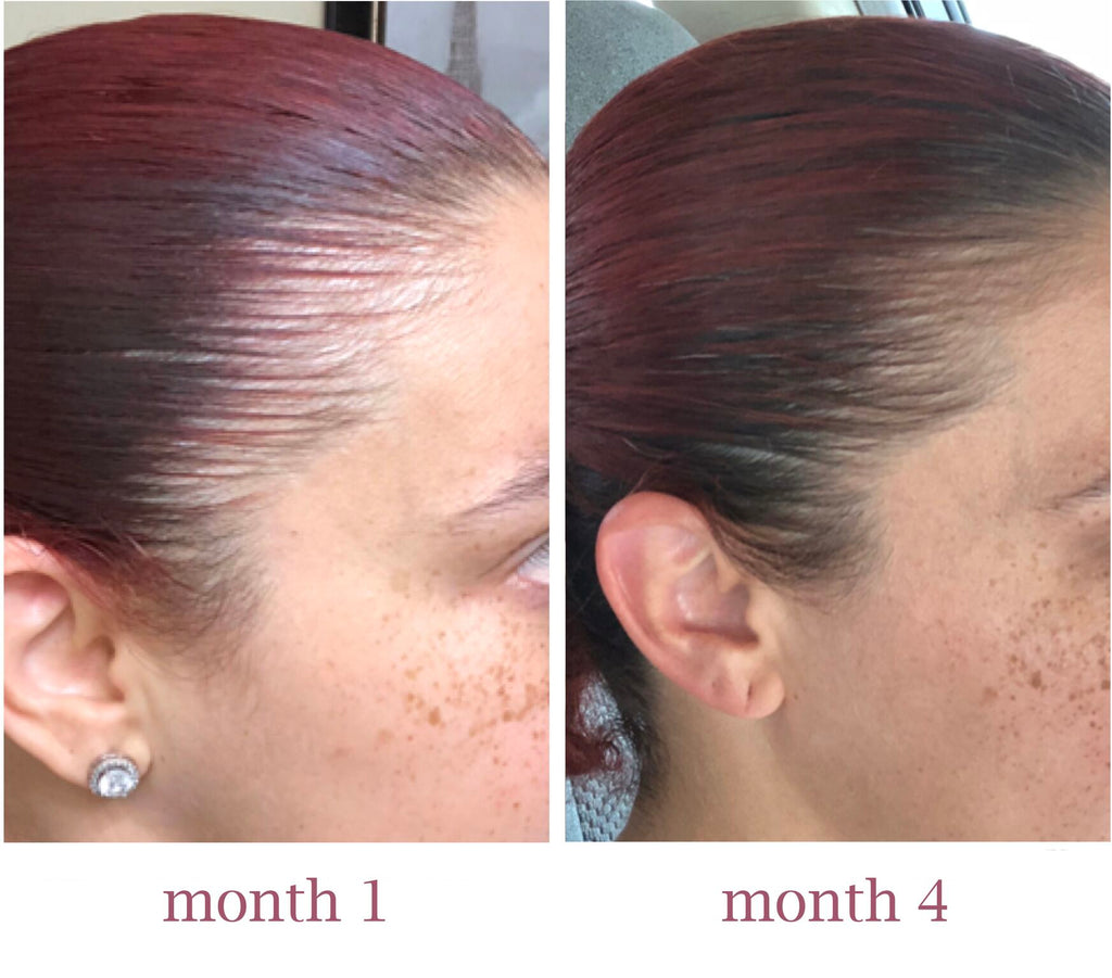 hair growth serum before and after