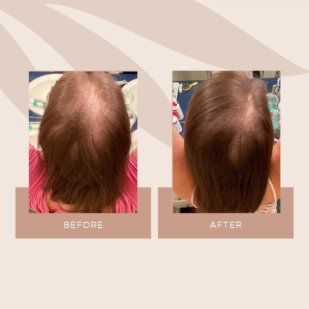 VEGAMOUR GRO Serum Before and After