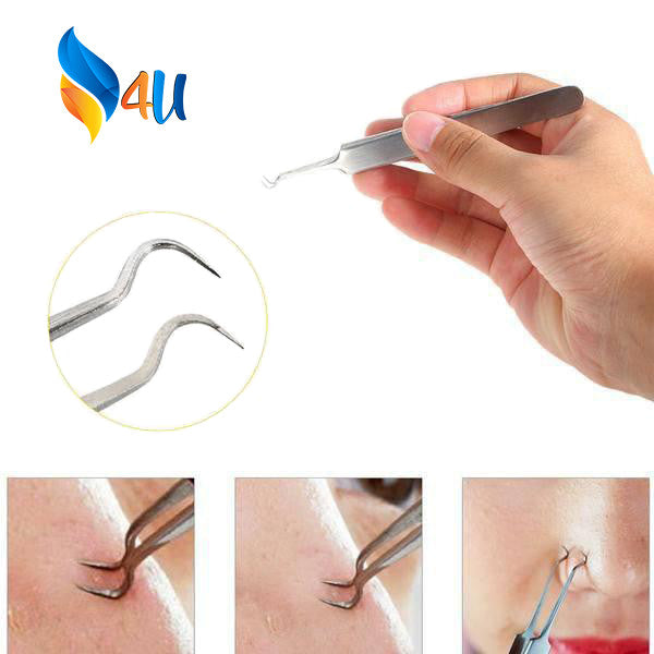 Blackhead Tweezers™ Stainless Steel ACNE Remover