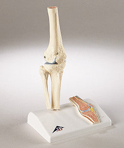 0232-Mi Functional Mini-Knee Joint Model