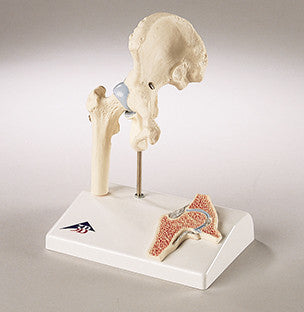 0233-Mi  Functional Mini-Hip Joint Model
