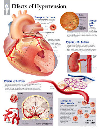 2451-08 Effects of Hypertension