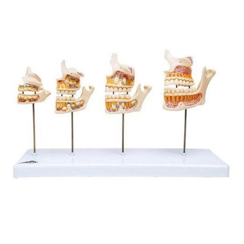Dentition and Jaw Development Model Set