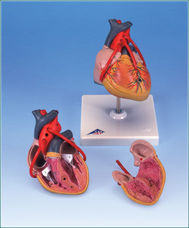 A385 Classic Heart with Bypass