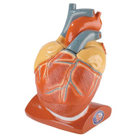 Photo of 0101-00 Giant Heart with Pericardium and Diaphragm