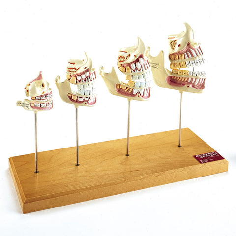 Jaw Development Model Set
