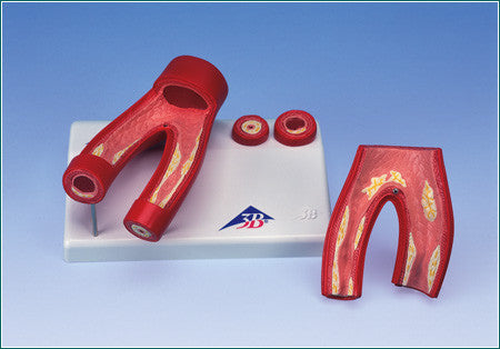 H400  Atherosclerosis Model with Cross Section of Artery