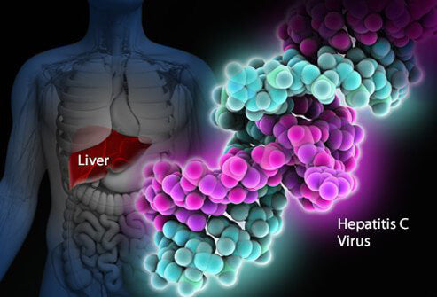Cannabis reduces side effects of hepatitis C treatment and increases treatment effectiveness