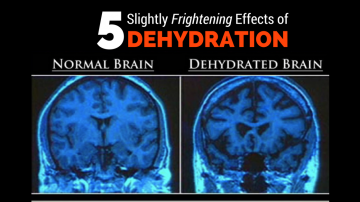 5 Slightly Frightening Effects of Dehydration