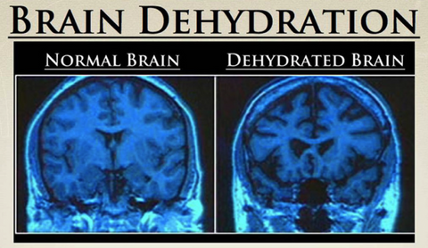 5 Slightly Frightening Effects of Dehydration – Liquid I V