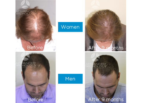 Before and After Hair Loss Treatment Photos