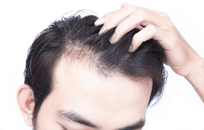 inflammatory hair loss