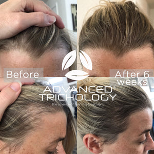 Postpartum Hair Loss Treatment after 6 months