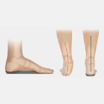 Footlogics Medical Full Length Orthotics