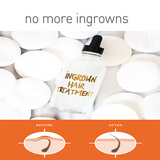 INGROWN HAIR TREATMENT