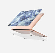Macbook Case Set - Protective Deep Blue Clouded Marble