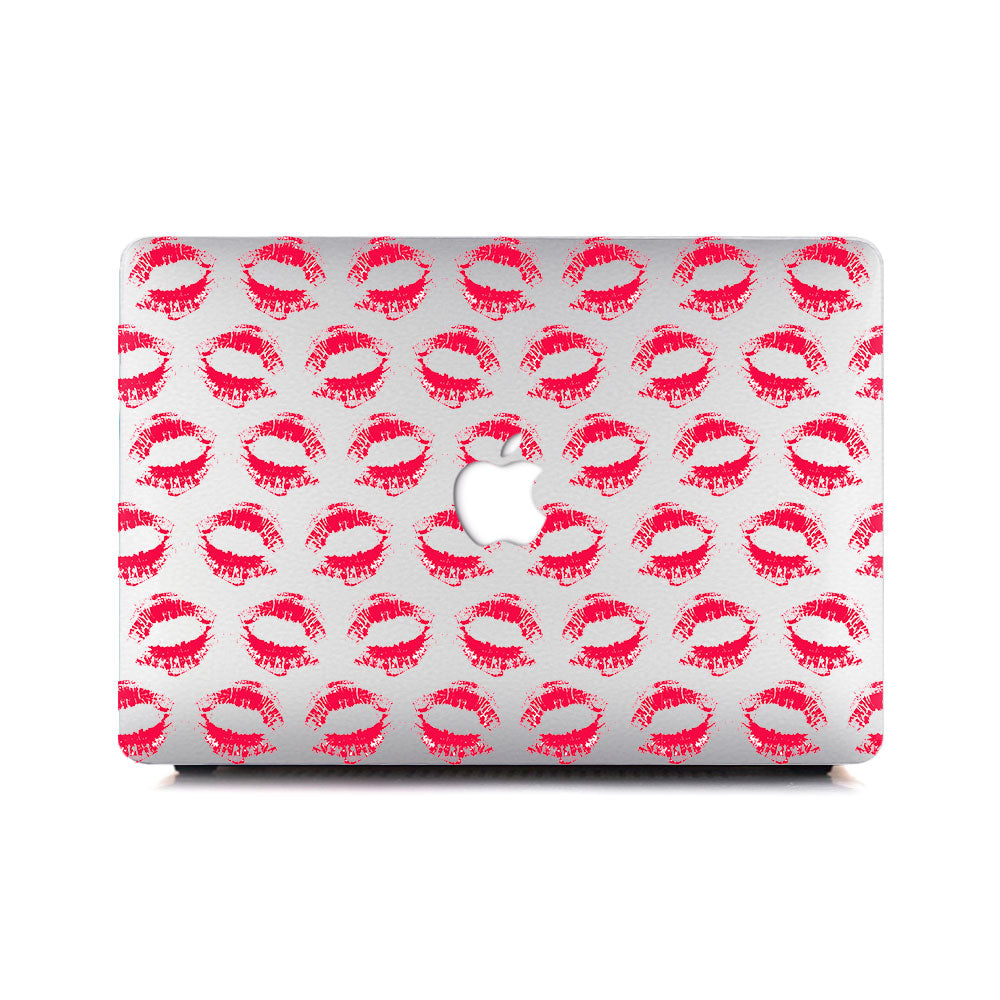 Macbook Case - Red Lips - colourbanana