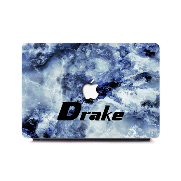 Custom Macbook Marble Case