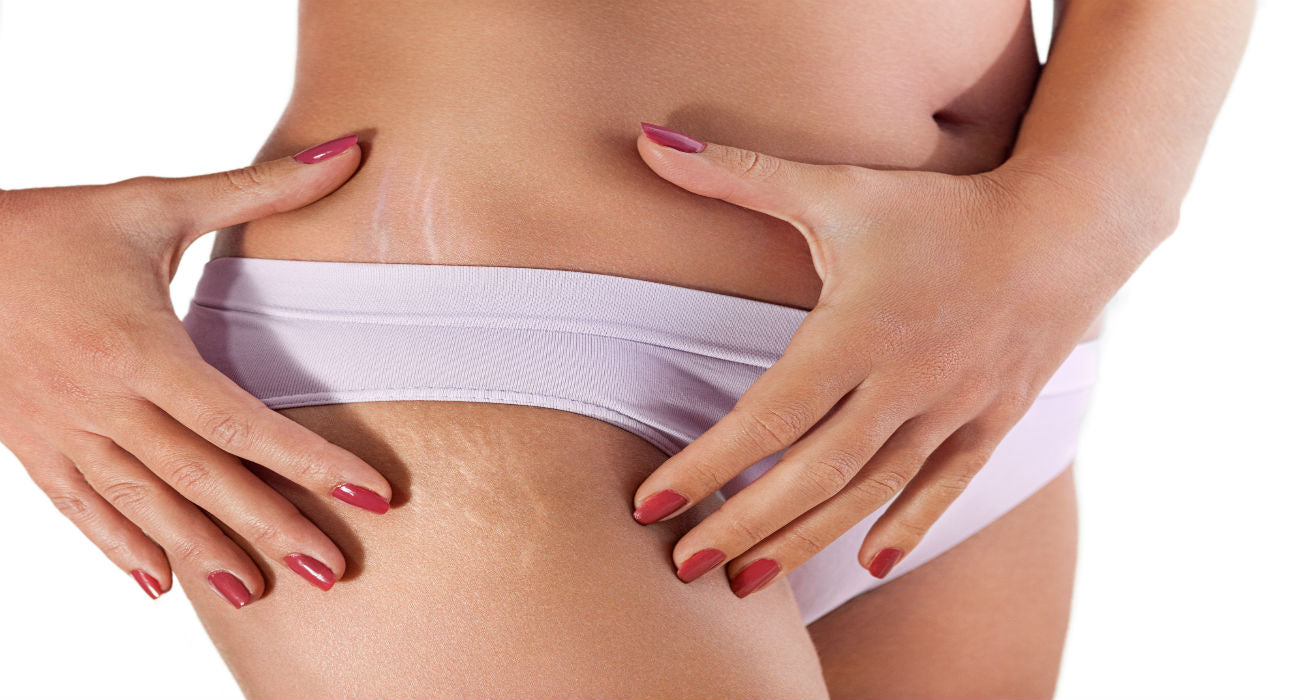 Top causes of stretch marks and how to treat them