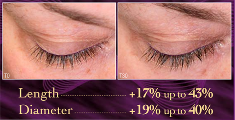 lash length diameter