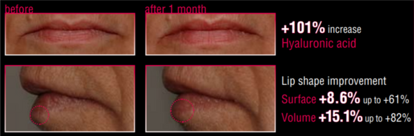 lip before after