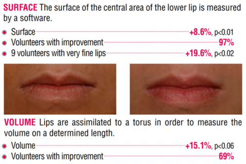 lip surface