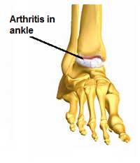 Ankle arthritis pain relief from Active650 Total Ankle Support