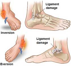 Ankle sprains and twisted ankle ligament injury