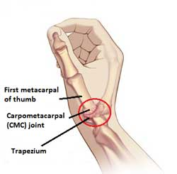 Carpometacarpal CMC joint pain helped with Active650 Thumb Support