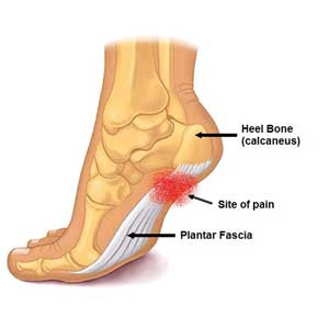 Foot pain, plantar pain and plantar fasciitis of the foot