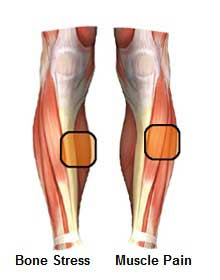 Shin splint pain in muscle and bone