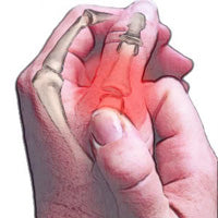 Painful thumb joint remedy