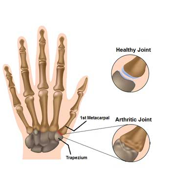 Arthritis pain in the thumb joint