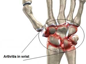 Wrist arthritis pain and sore wrists