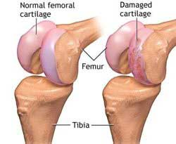 Knee cartilage damage and injury