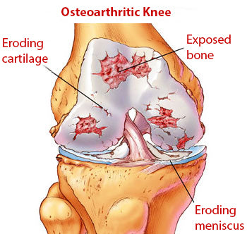 Damaged cartilage in the knee joint