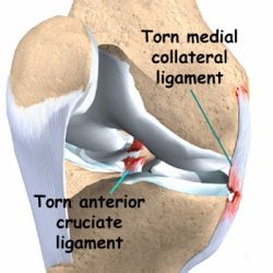 Anterior cruciate ligament ACL and medial collateral ligament MCL injury