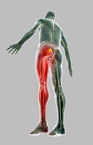 Sciatica And Sciatic Nerve Pain Active650