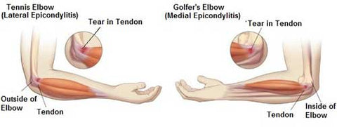 Elbow pain, golfers elbow and tennis elbow