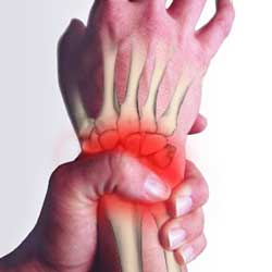 Wrist pain, repetitive strain and overuse wrist injury