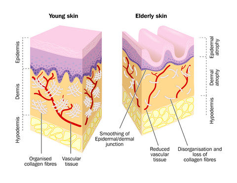 Replacing lost collagen