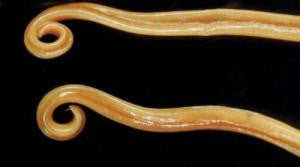 Preserved Round Worm Ascaris