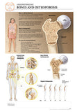 11x17 Post-It Disease Poster - Understanding the Effects of Osteoporosis on Bones - Online Science Mall
