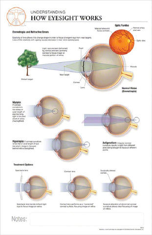 11x17 Post-It Anatomy Poster - How the Human Eye Works - Online Science Mall