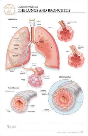 11x17 Post-It Disease Poster - The Effects of Bronchitis on the Lungs - Online Science Mall